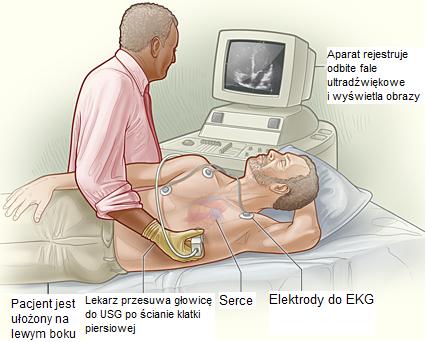 echokardiografia przezklatkowa