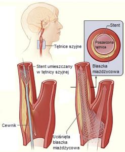 przebieg zabiegu stentowania tętnic szyjnych