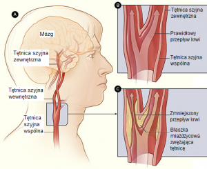 stentowanie tętnic szyjnych